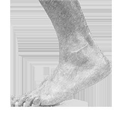 Синдром диабетической стопы