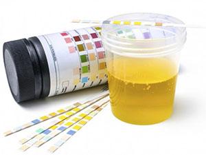 анализ на уровень холестерина в крови подготовка