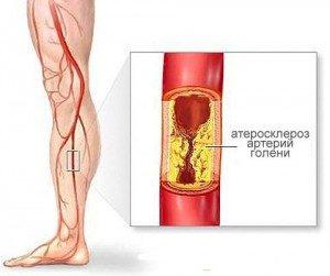Атеросклероз и ноги